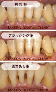 歯周病治療case1