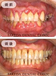 歯周病治療case2
