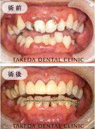 歯周病治療case3