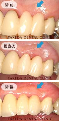 審美歯科case1