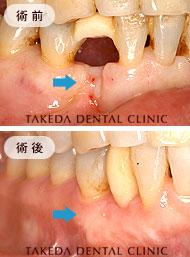審美歯科case2